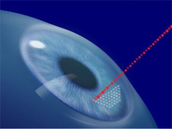 IntraLase All-Laser No-Blade LASIK Surgery Flap Creation
